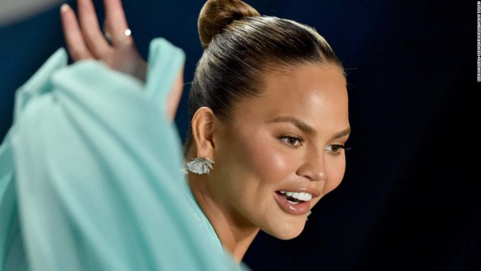 Chrissy Teigen says she had surgery to remove fat from her cheeks